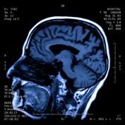 Traumatic Brain Injury Statistics