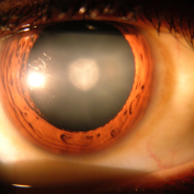 Cataract Statistics
