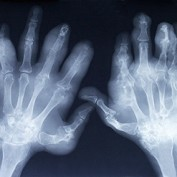 Arthritis Statistics