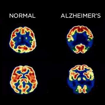 alzheimers-disease statisticbrain